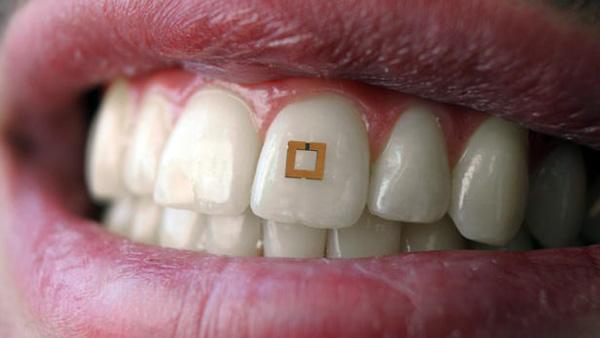 sensor-tanden.jpg